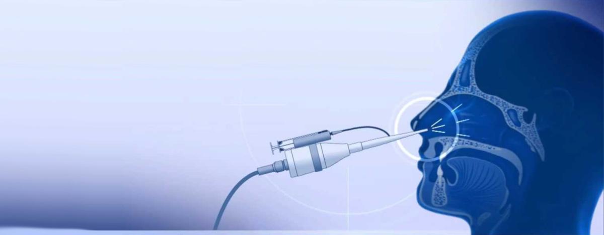 Обоснование лечения ЛОР-патологий аппаратом «Кавитар»